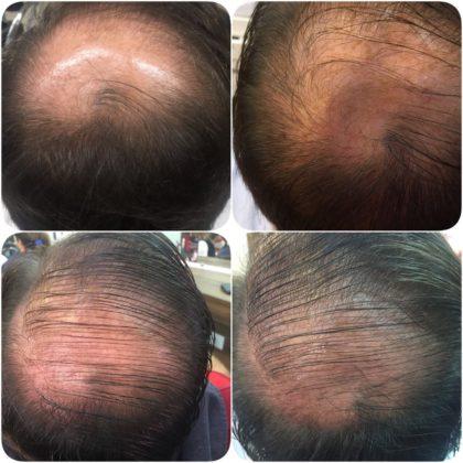CUIDADO, queda de cabelo pode ser sinal de doença!