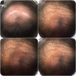 tratamento-perfil-moema
